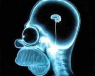 אחלה מוח!