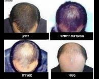 שיער דליל